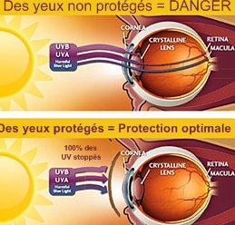 protection yeux UV